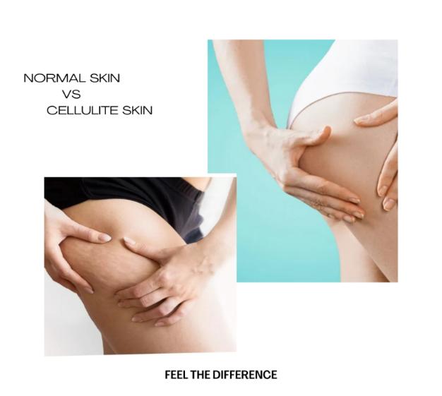 Celulit vs lëkurë normale